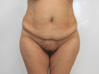 Tummy Tuck Before and After Pictures McAllen, TX