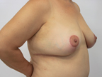 Breast Lift without Implants/Reduction Before and After Pictures McAllen, TX