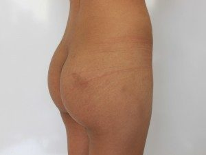 Butt Implants/ Augmentation Before and After Pictures McAllen, TX