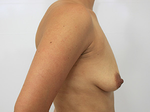 Revision Plastic Surgery Before and After Pictures McAllen, TX