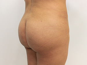 Brazilian Butt Lift Before and After Pictures McAllen, TX