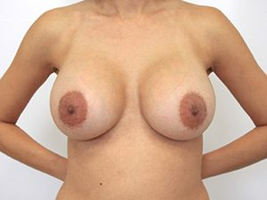 Breast Augmentation Before and After Pictures McAllen, TX