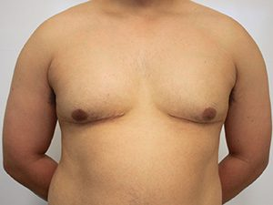 Male Plastic Surgery Before and After Pictures McAllen, TX