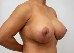Breast Revision Before and After Pictures McAllen, TX