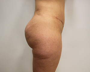 VASERLipo® Before and After Pictures McAllen, TX