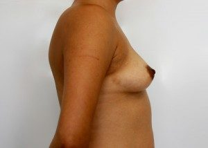 Transumbilical Breast Augmentation Before and After Pictures McAllen, TX