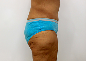 Post Bariatric Surgery Before and After Pictures McAllen, TX