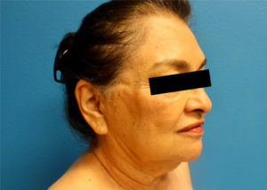 FaceTite™ Before and After Pictures McAllen, TX