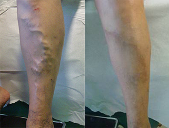 Ambulatory Phlebectomy Before and After Pictures McAllen, TX